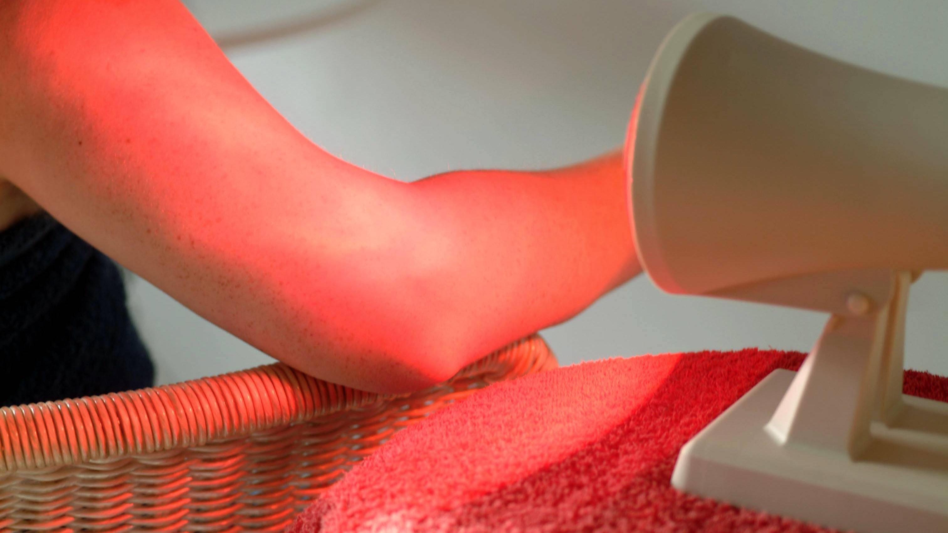 Die Anwendung und Wirkung von Rotlichtlampen sind recht breit.