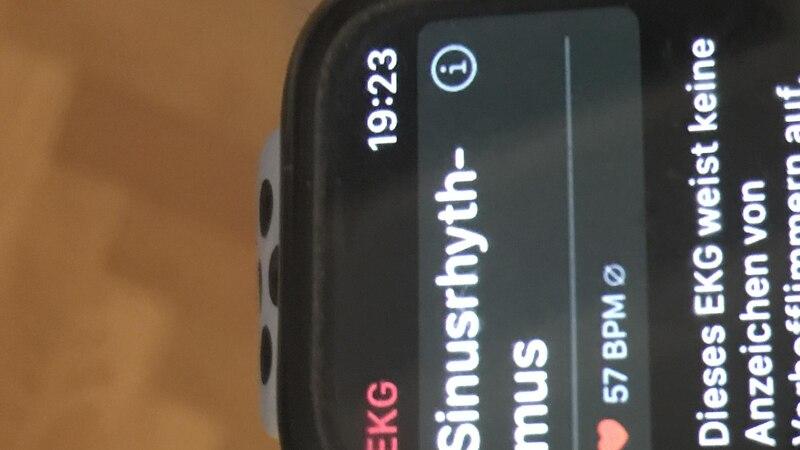 Apple Watch: Blutdruck messen - geht das?