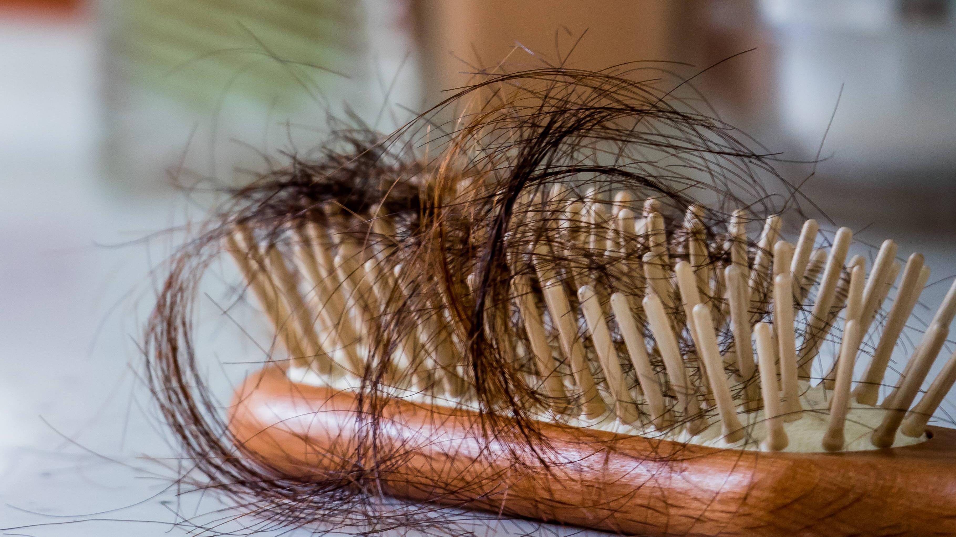 Haarausfall durch Cortison - was Sie dazu wissen sollten
