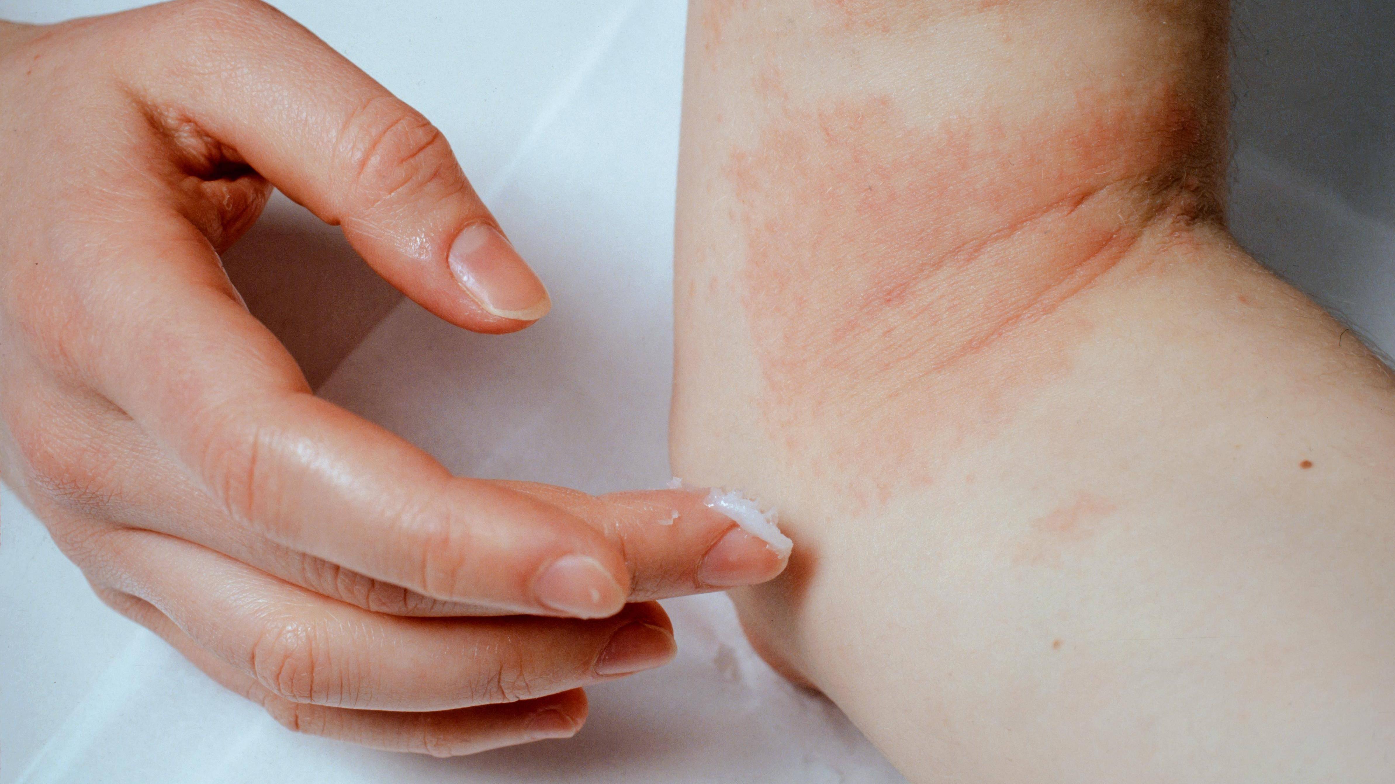 Bläschen auf der Haut: Ursachen & Was Sie dagegen tun können