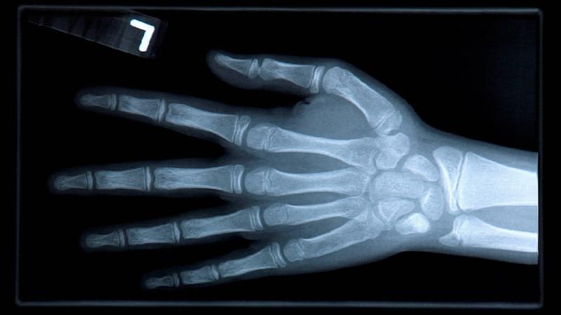 Ein gebrochener Finger wird oft nur unter dem Röntgenapparat erkennbar.