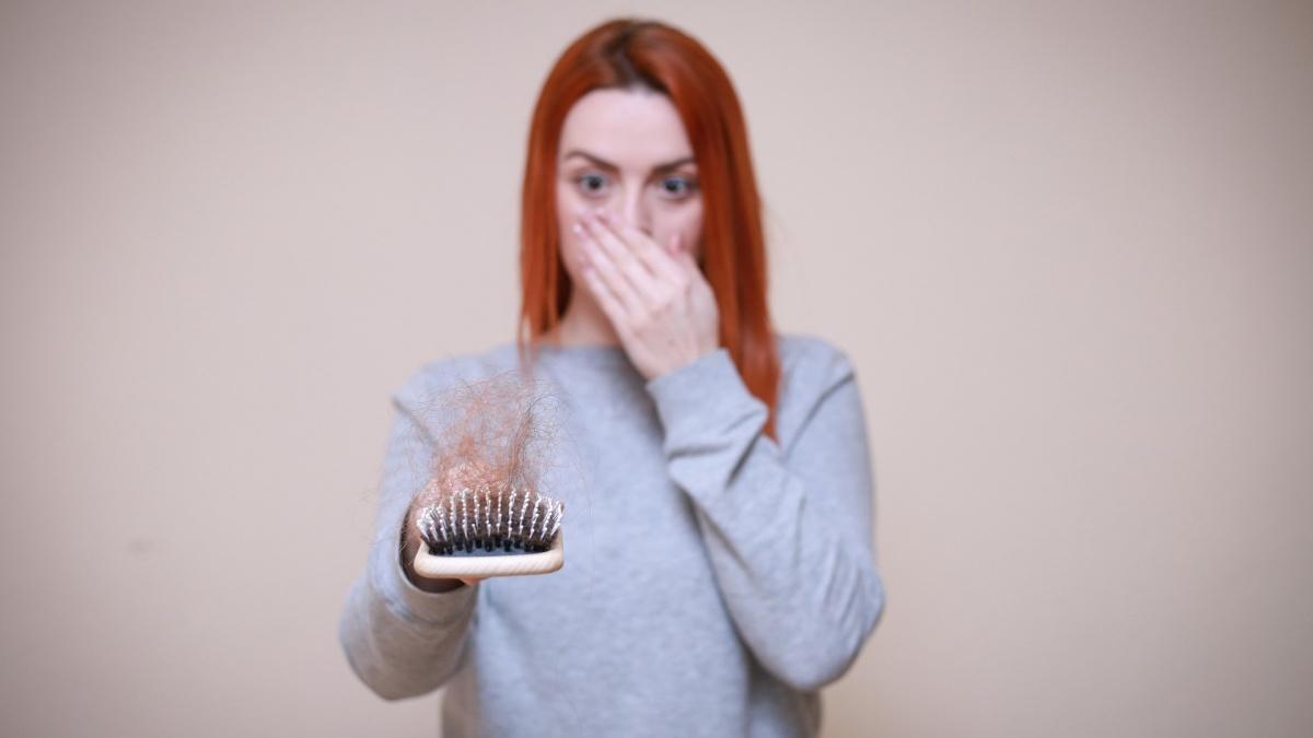 Hormonell bedingter Haarausfall - was Sie dazu wissen sollten