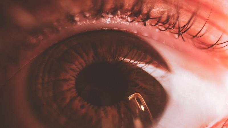 Bindehautentzündung: Symptome, Ursachen und Behandlung der entzündeten Augen
